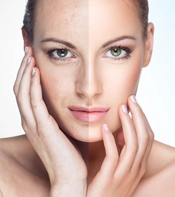 Fraxel Laser Skin-Resurfacing Treatments at Booth Dermatology and Cosmetic Care Center
